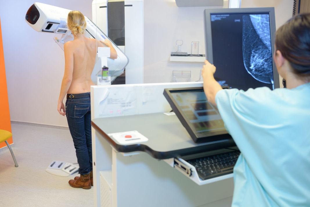cancer, mamographie, inégalités 123 RF ©