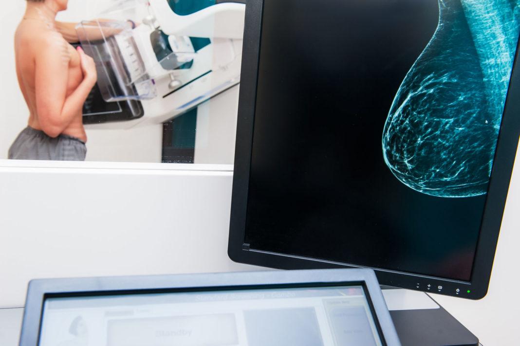 mammographie, étude dépistage, cancer du sein, ©123RF