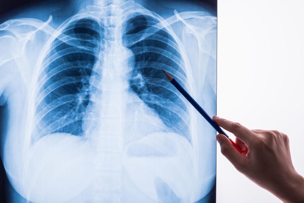 Bpco, maladies pulmonaires, covid-19 123RF©
