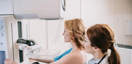Le dépistage du cancer du sein est en baisse 123RF©