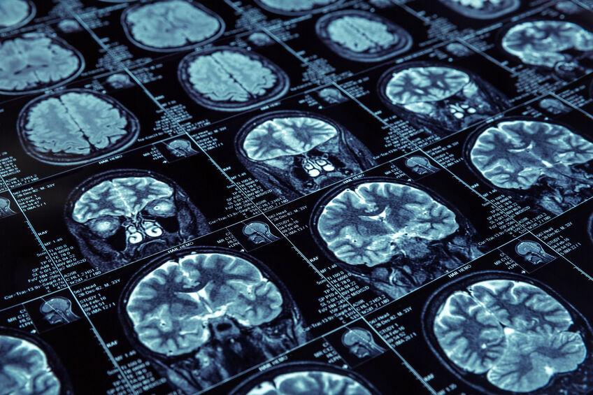 Journée mondiale de la maladie d'Alzheimer 123RF©